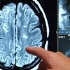 Relacionada cerebro.jpg