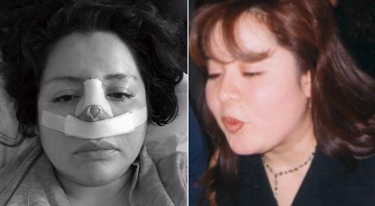 Mujer pidió una liposucción y sale con nariz nueva