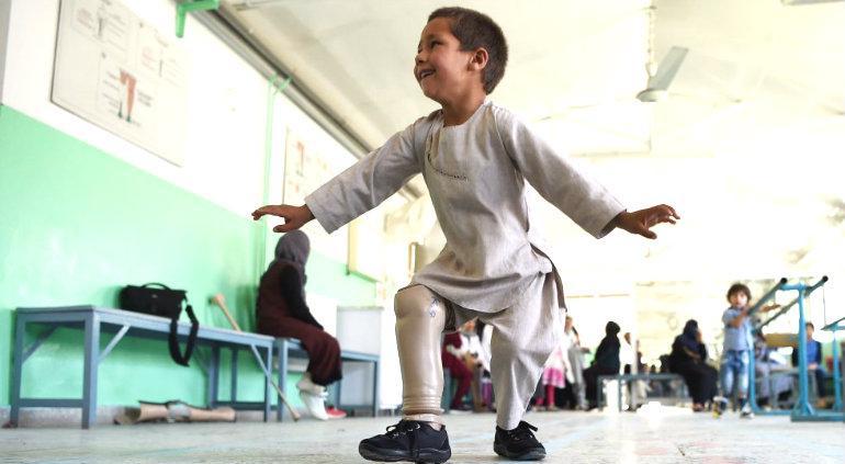 El nene afgano que baila de felicidad al recibir su pierna ortopédica