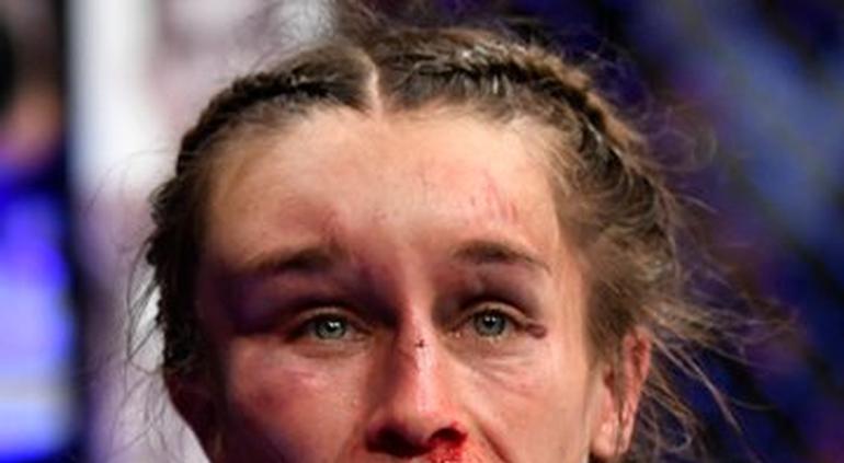 Así quedó una luchadora de UFC después de una pelea — Impactante