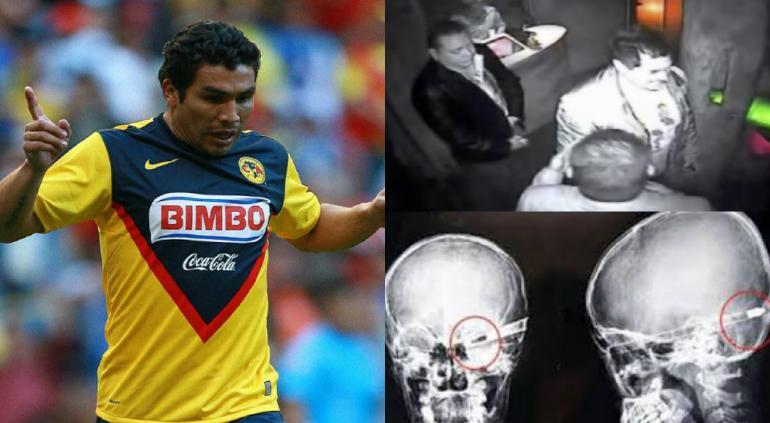 Salvador Cabañas comienza a perder la visión de un ojo
